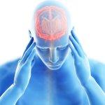 neurological Image ID: 111505354 (L). Encephalitis involves inflammation causing swelling within the brain. Image credit: Sebastian Kaulitzki / 123rf