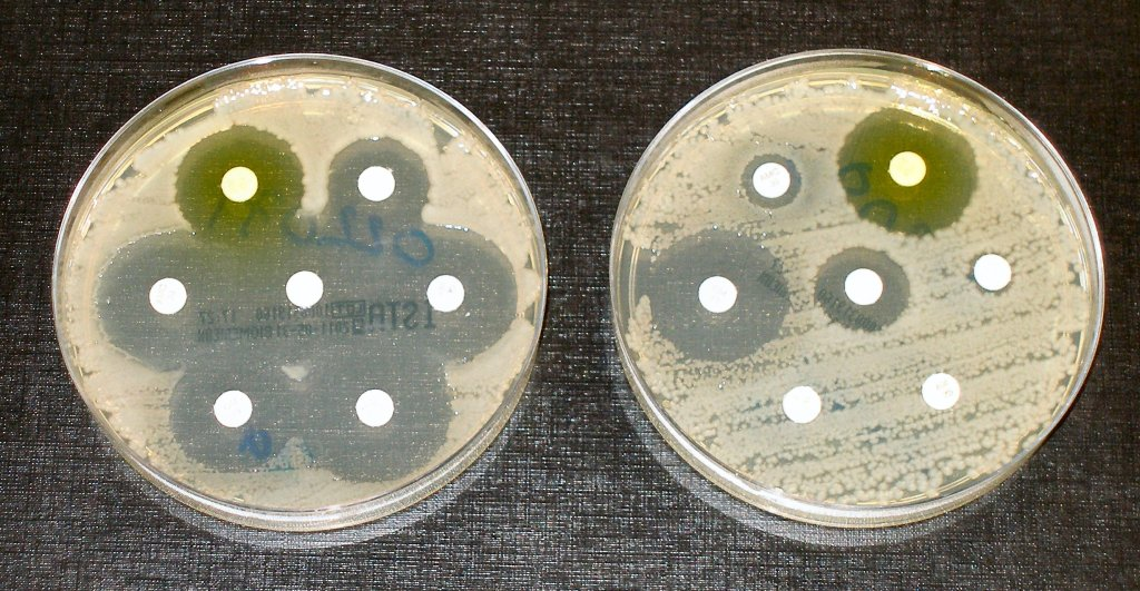 Antimicrobial resistance tests. Image credit: Dr Graham Beards, CC BY-SA 4.0 , via Wikimedia Commons, antibiotic resistant