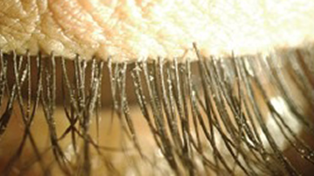Demodex Folliculorum Symptoms Causes And Treatments