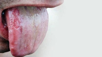Munculnya Bintik Aneh di Lidah- Global Estetik Dental Care