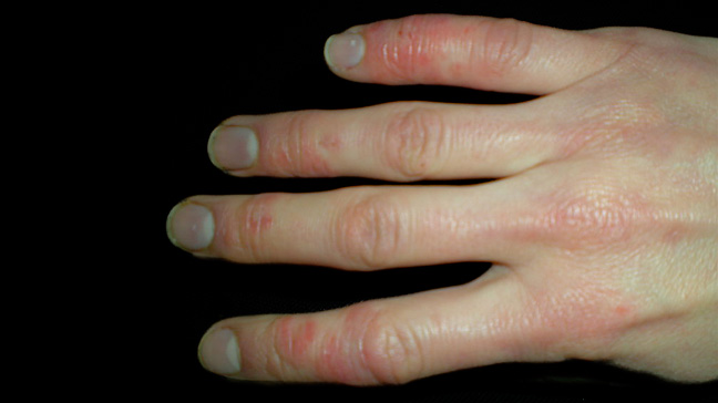 Limited Scleroderma Fingers