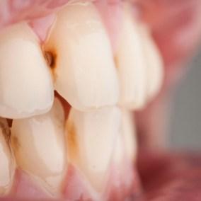 Efek Bulimia pada Gigi- Global Estetik Dental Care