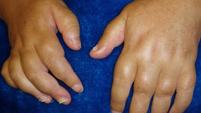 A Sausage Like Swelling Is Mon In The Early Ses Of Psoriatic Arthritis