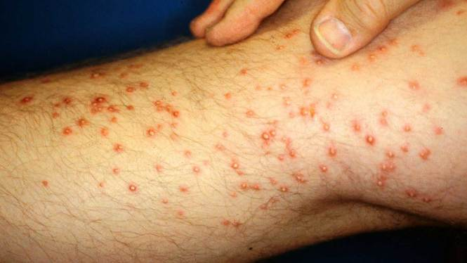 What Does A Fire Ant Bite Look Like Bites Allergic Reaction Infection Pictures