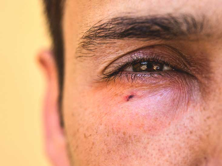 Eye Emergencies Types Symptoms And Prevention