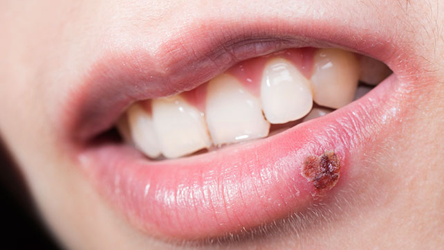 Are Herpes Contagious Even If There Are No Cold Sores Present On The Infected Person? 2