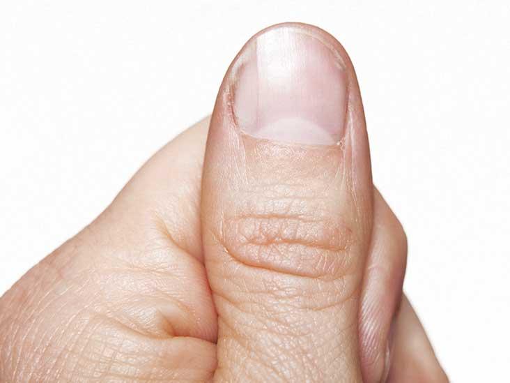 Ridges in Fingernails: Symptoms, Causes, and Treatments