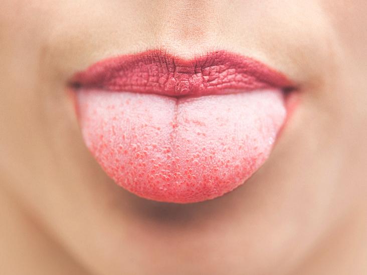 sore bump tongue tip
