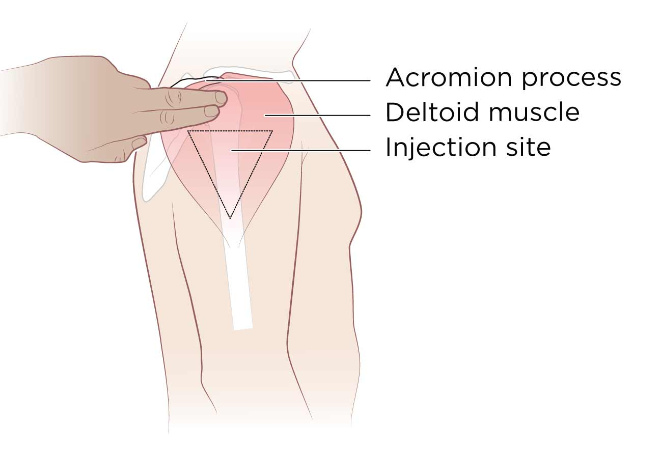 Injection Thigh Outer Upper