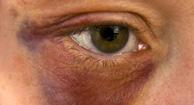 Ojos Negro