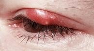 Blefaritis inflamación de párpados