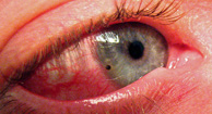 Objeto extraño en el ojo