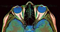 La neuritis óptica