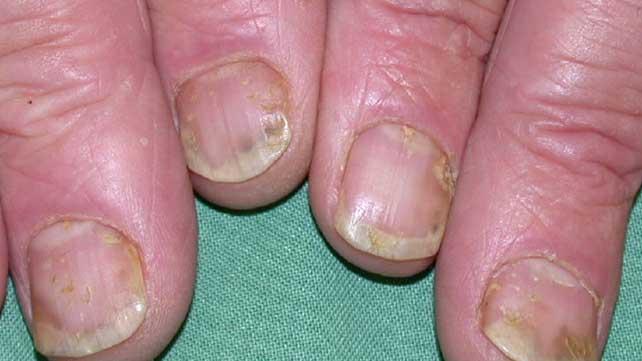 Psoriasis Arthritis Hands