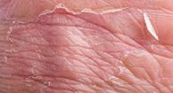 Photo of eczema.