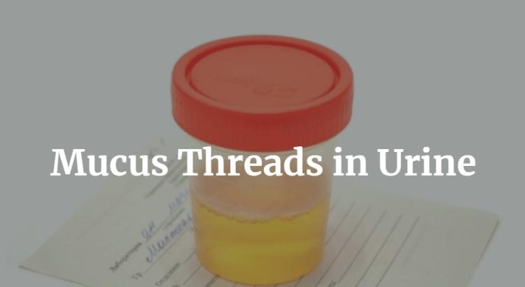 Mucus Threads in Urine
