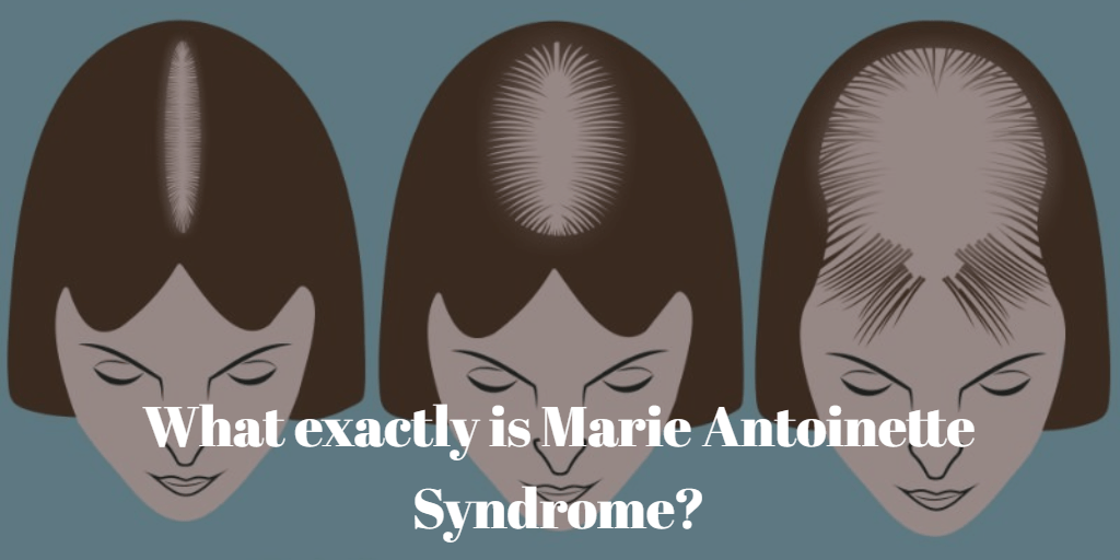 What exactly is Marie Antoinette Syndrome?