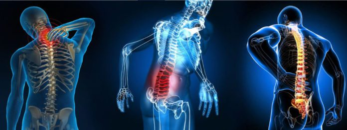 Spondylitis, ways to treat Spondylitis