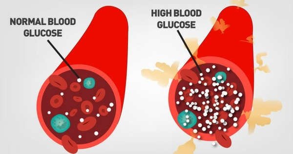 medications that can affect blood glucose