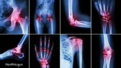 joint pain,arthritis,green tea for arthritis