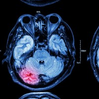 5 steps to speed recovery from concussions and traumatic brain injury