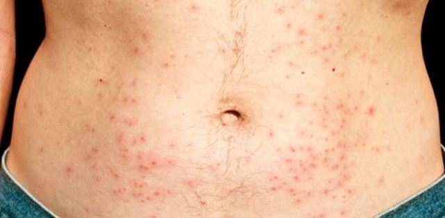 Chlorine allergy rash