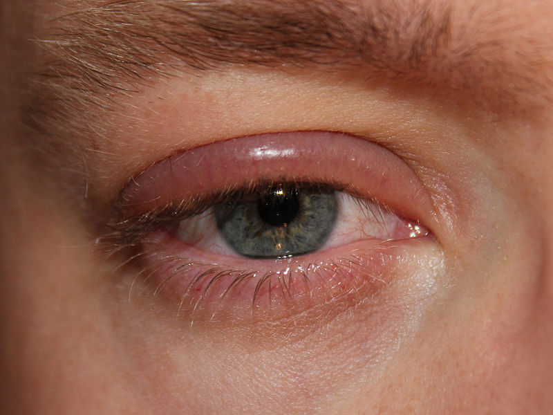 Swollen Eyelids: Causes, Pictures, Symptoms And Treatment