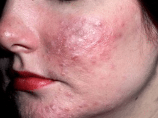 How To Get Rid Of Scabies In 24 Hours How Long They Last