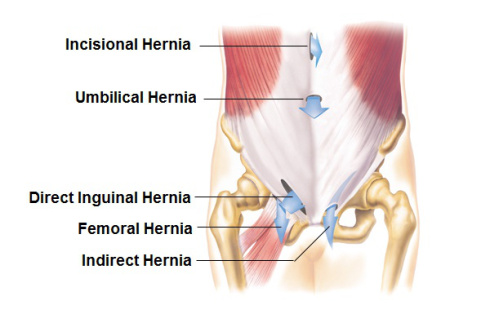 How to prevent risk of hernia during workouts - Health Secrets