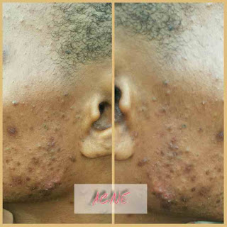 How to get Rid of Acne(Pimples ), Blackheads and Boil Naturally
