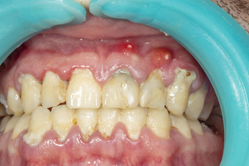 PERIODONTAL ABSCESS:TREATMENT AND PREVENTION
