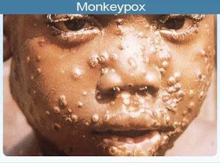 Monkeypox: Causes, Prevention, Treatment Vaccination