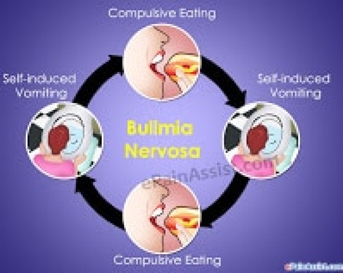 How To Prevent Dental Problems When You Have Bulimia
