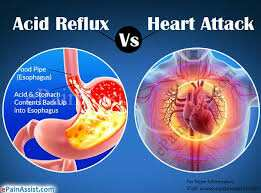 Possible Health Risks of Acid Reflux and Some Proven Solutions