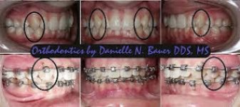 Enameloplasty Tooth Reshaping and Treatment in Cosmetic Dentistry