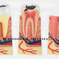 PERIODONTAL-DISEASES-CAUSES-SYMPTOMS-AND-TREATMENT
