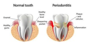 How do you get rid of gum disease at home