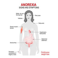 Anorexia Nervosa: Causes, Symptoms and Treatments