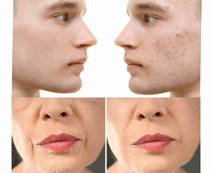 Get Rid of Acne and Wrinkles With Tretinoin Supatret Gel