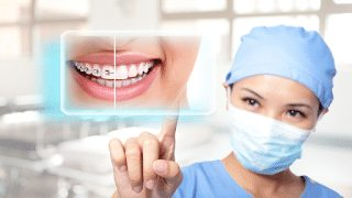 What You Need to Know About Porcelain Veneers And Dental Lumineers