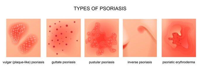 Ayurvedic Treatment of Psoriasis