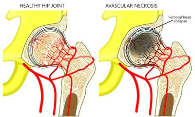 Avascular necrosis: causes, symptoms, treatments, prevention and more