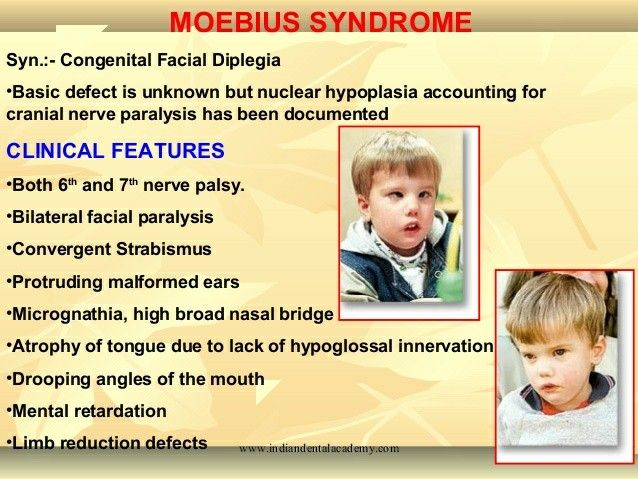 MOEBIUS SYNDROME: CAUSES, SYMPTOMS, AND TREATMENT