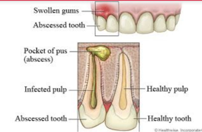 17 COMMON DENTAL PROBLEMS AND TOOTH TREATMENT