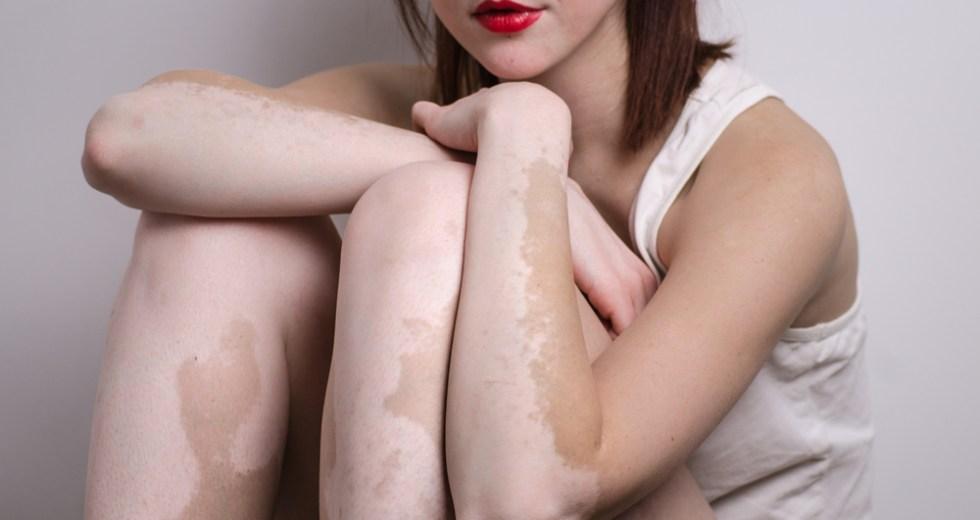 Vitamin D Might Be The Key Ingredient In Vitiligo Treatment
