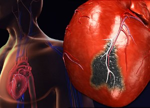 The Main Symptoms That Occur When Having A Heart Attack