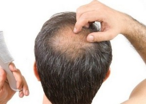 Revolutionary Hair Loss Treatment Invented By 81-Year Old Doctor