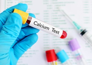 High Levels Of Calcium In The Blood Don't Always Indicate That You Have Cancer