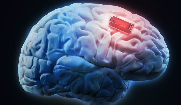 Addiction Can Be Treated With Brain Implants