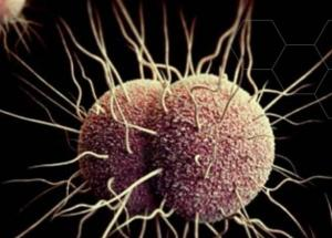 Gonorrhea that is Resistant to Drugs is Now a Real Thing